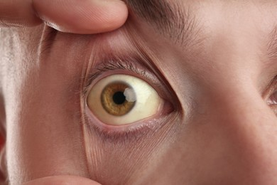 Man checking his health condition, closeup. Yellow eyes as symptom of problems with liver