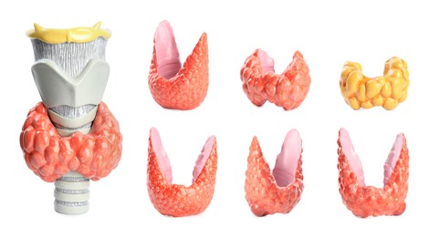 Plastic models of healthy and afflicted thyroid on white background, collage