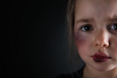 Closeup view of little girl with bruises on face against dark background, space for text. Domestic violence victim