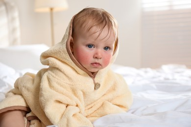 Cute little baby with allergy symptoms on cheeks at home