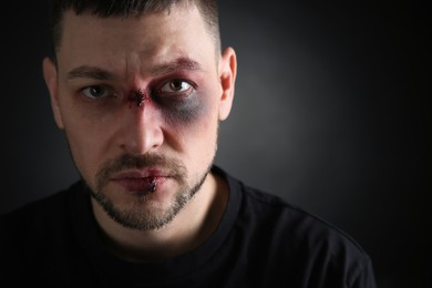 Man with facial injuries on dark background, space for text. Domestic violence victim