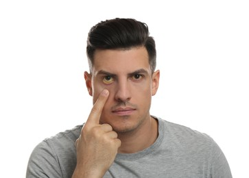 Man checking his health condition on white background. Yellow eyes as symptom of problems with liver