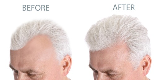 Closeup view of senior man before and after hair loss treatment on white background, collage. Banner design