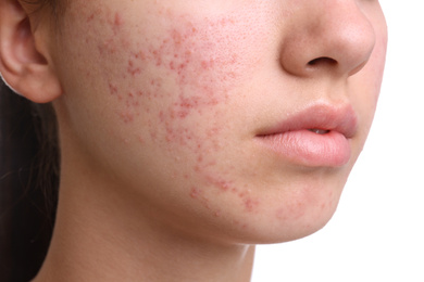 Teenage girl with acne problem on white background, closeup