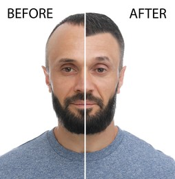 Man before and after hair loss treatment on white background, collage