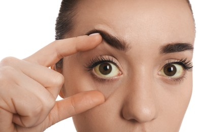 Woman checking her health condition on white background, closeup. Yellow eyes as symptom of problems with liver