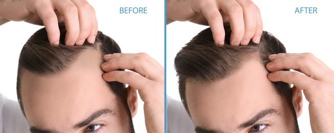 Closeup view of man before and after hair loss treatment on white background, collage. Banner design