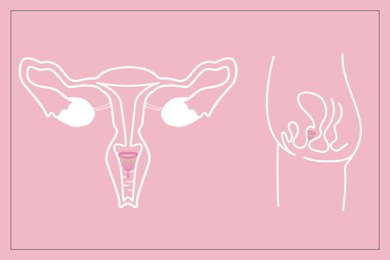 Instruction how to use menstrual cup during period. Female reproductive system on pink background, illustration