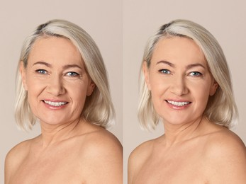 Beautiful mature woman before and after cosmetic procedure on beige background, collage. Plastic surgery